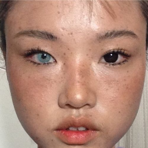 Why are people wearing mismatched coloured contact lenses?