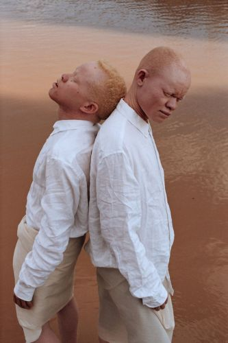Stunning portraits of young African men living with Albinism