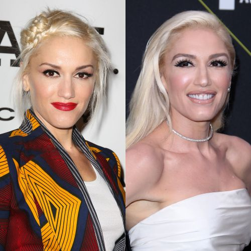 Gwen Stefani Has Undergone Multiple Cosmetic Procedures, According to Top Plastic Surgeons