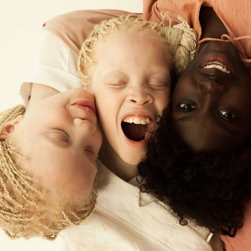 The Bawar sisters on embracing their uniqueness and albino representation