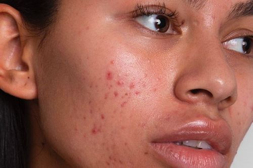 An expert on maskne, the pandemic's growing skincare problem