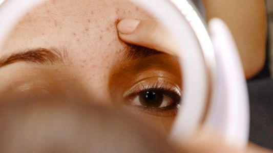 How to fight acne if you're not blessed with perfect skin