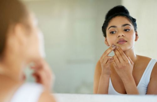 8 Ways to Remedy an Over-Picked Pimple
