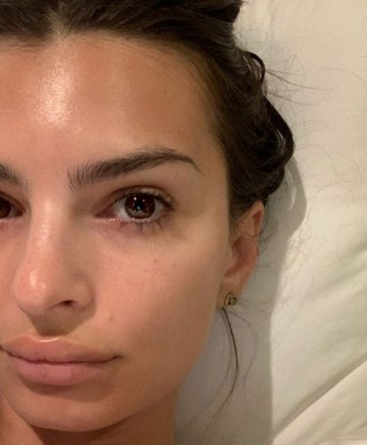 Rolling tiny needles all over your face might be the answer to complexion perfection